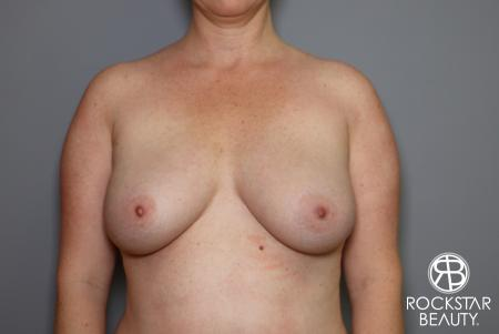 Combo Procedures - Breast: Patient 2 - After Image
