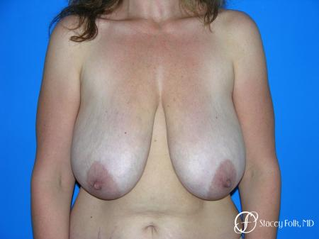 Denver Breast Reduction Mastopexy 5455 - Before Image