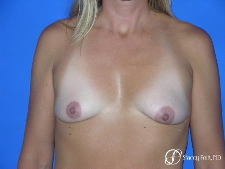 Denver Breast Lift and Augmentation 4558 - Before Image 1