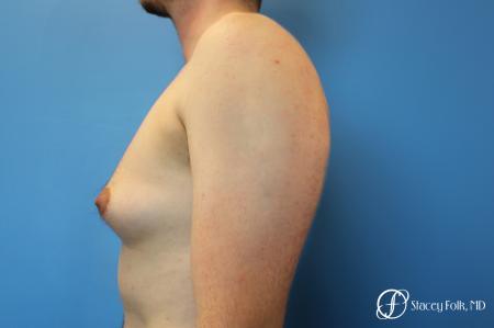 Denver FTM Female to Male Top Surgery 7708 - Before and After Image 3