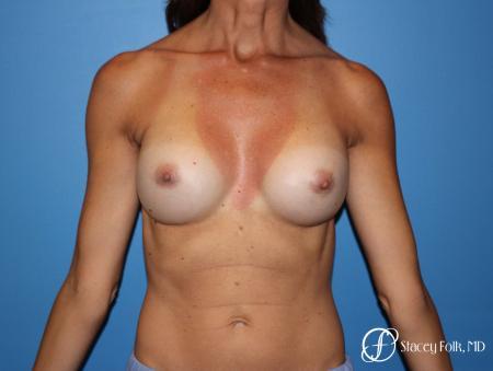 Denver Breast Revision 8504 -  After Image 1