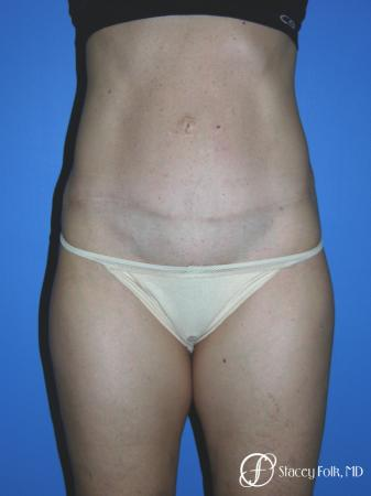 Denver Tummy Tuck Abdominoplasty 5485 -  After Image 1