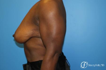 Denver Breast Reduction (Mastopexy) 7081 - Before and After Image 3