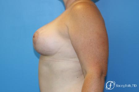 Denver Breast Augmentation Mastopexy 8507 -  After Image 4