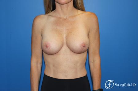 Breast Augmentation With Lift: Patient 1 - After Image