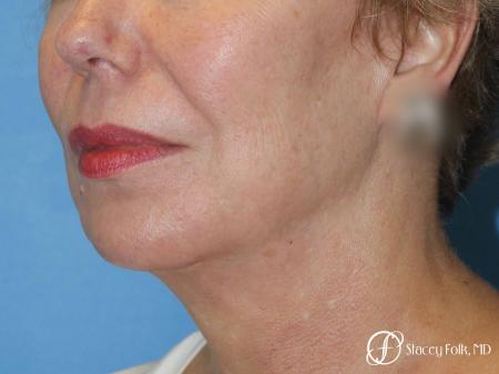 Denver Facial Rejuvenation Facelift, Fat Transfer, and Laser Resurfacing 8513 -  After Image 2