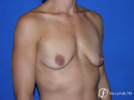 Denver Breast augmentation and breast lift (Mastopexy) 10091 - Before Image 2