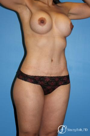 Denver Mommy makeover with a breast augmentation mastopexy and abdominoplasty 5352 -  After Image 2