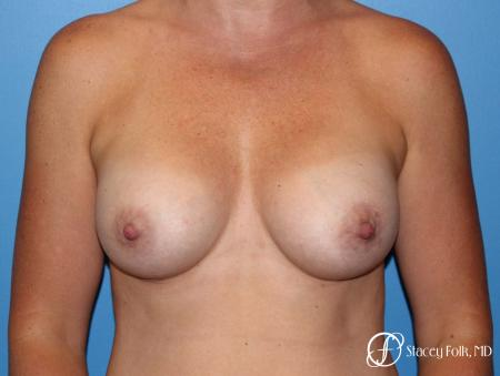 Denver Breast augmentation using Sientra textured anatomic implants 5578 -  After Image 1