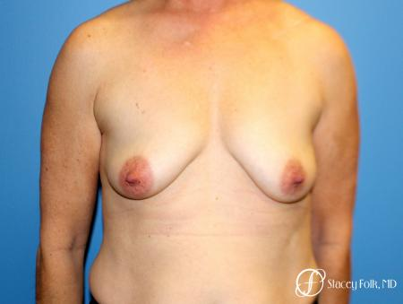 Denver Breast Augmentation Mastopexy 8163 - Before Image 1