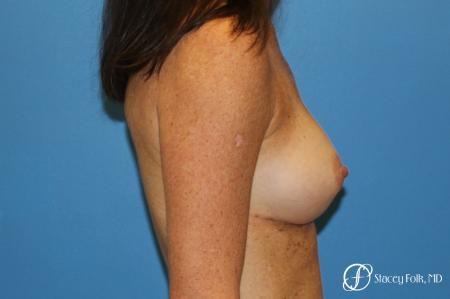 Denver Breast Augmentation using Sientra Silicone Gel Breast Implants 9362 -  After Image 3