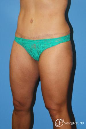 Denver Tummy Tuck Abdominoplasty 5368 -  After Image 2