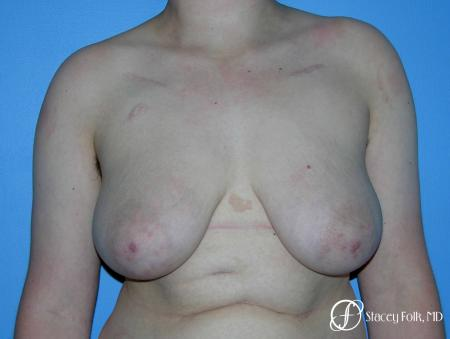 Denver Female to Male Top Surgery 5257 - Before Image 1
