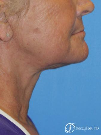 Facelift and Laser - After Image