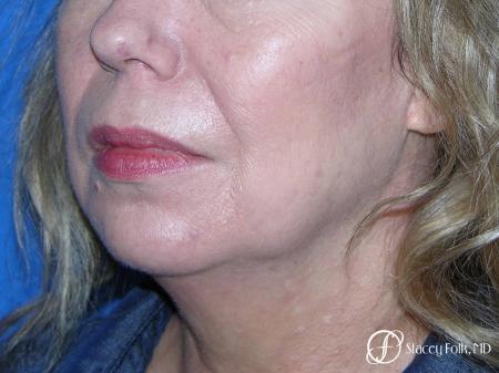Denver Facial Rejuvenation Facelift, Fat Transfer, and Laser Resurfacing 8513 - Before Image 2