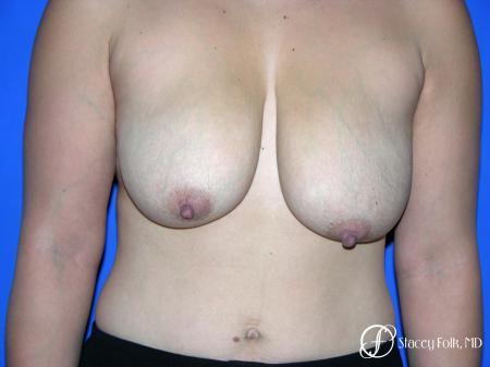 Denver Breast reduction 5842 - Before Image