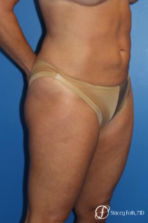 Denver Liposuction 10267 -  After Image 3