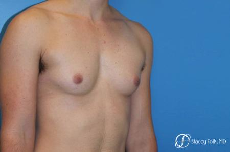 Denver FTM female to male top surgery using gynecomastia technique 5128 - Before Image 2