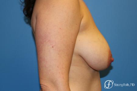 Denver Breast Lift - Mastopexy 7988 - Before and After Image 3