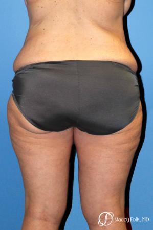 Denver Body Lift belt lipectomy, liposuction, mastopexy 5935 - Before Image 2
