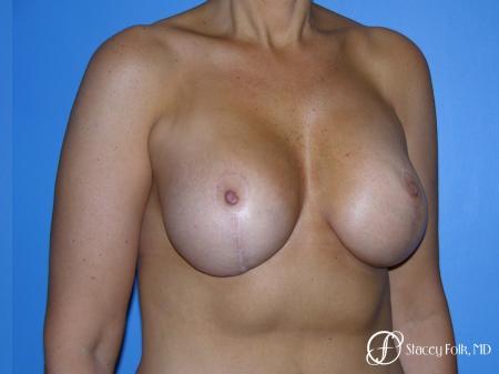Denver Breast Revision 10094 - Before Image 3