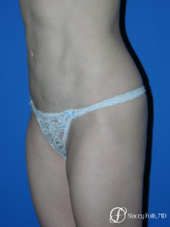 Denver Tummy Tuck Abdominoplasty 5456 -  After Image 2