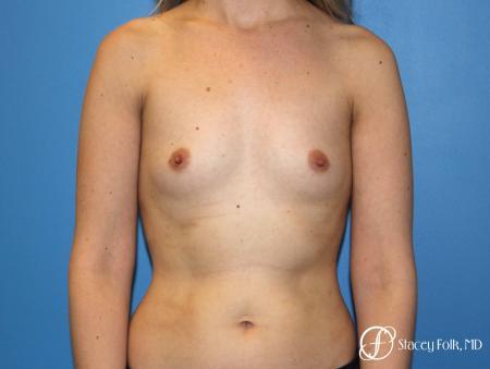 Denver Breast augmentation 7110 - Before Image 1