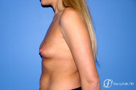 Denver Breast Augmentation 3626 - Before and After Image 5