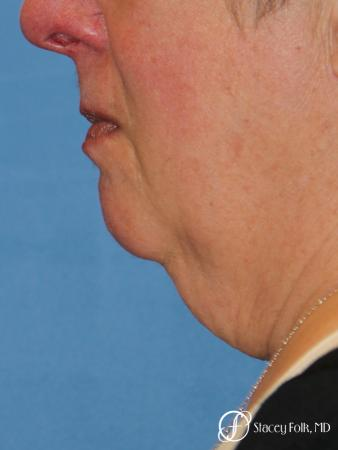 Denver Facial Rejuvenation Face and Neck Lift with Fat Transfer to the Face 9133 - Before Image