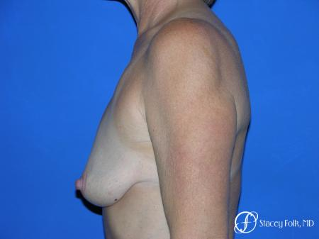 Denver Breast Lift and Augmentation 4557 - Before and After Image 3
