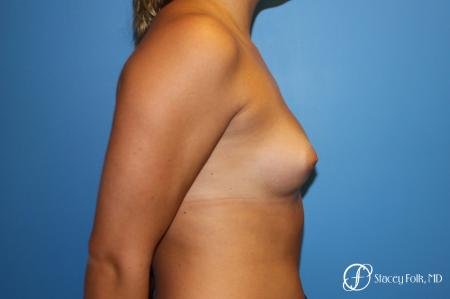 Fat Transfer Breast Augmentation - Before and After Image 3