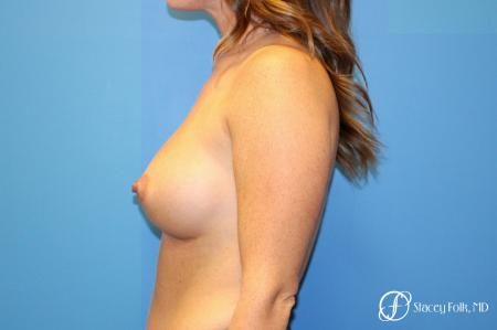 Denver Breast Augmentation using Sientra Silicone Breast Implants 9092 -  After Image 3