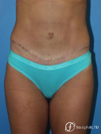 Denver Tummy Tuck - Abdominoplasty 8299 -  After Image 1