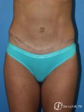Denver Tummy Tuck - Abdominoplasty 8299 - After Image