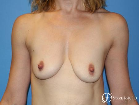 Denver Breast lift and Augmentation 7850 - Before Image