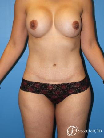 Denver Mommy makeover with a breast augmentation mastopexy and abdominoplasty 5352 -  After Image 1