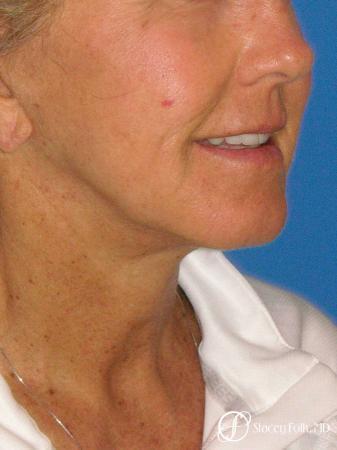 Denver Facial Rejuvenation Face Lift and Laser Resurfacing 7119 -  After Image 2