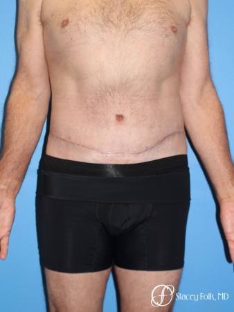 Denver Body Lift - Belt Lipectomy 8570 - After Image