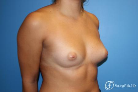 Fat Transfer Breast Augmentation - Before Image 2