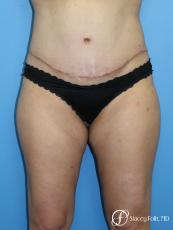 Tummy Tuck (Abdominoplasty) and Liposuction - After Image
