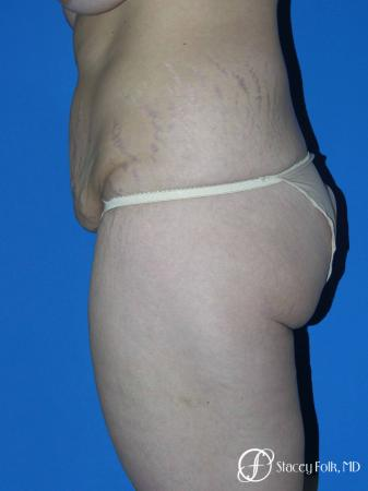Denver Body Lift Belt lipectomy 5262 - Before and After Image 3