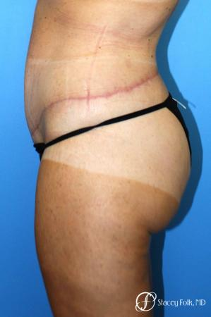 Denver Body Lift belt lipectomy, liposuction, mastopexy 5935 -  After Image 3