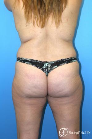 Tummy Tuck (Abdominoplasty) and Liposuction - Before Image 2