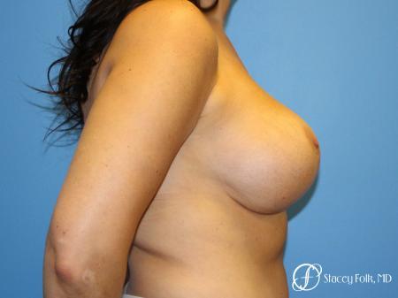 Denver Breast Revision 10094 -  After Image 5