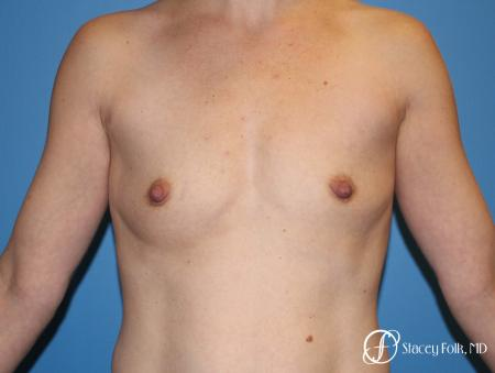 Denver Breast Augmentation using Textured Sientra Breast Implants 8414 - Before Image 1