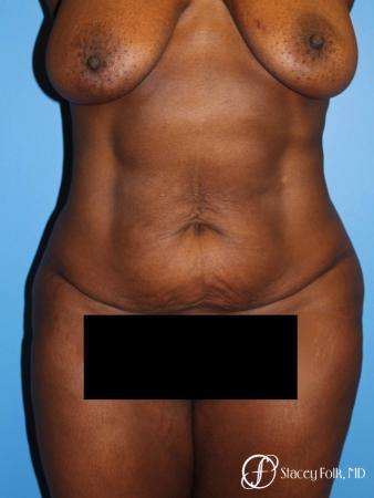 Denver Tummy Tuck - Abdominoplasty 7514 - Before Image 1