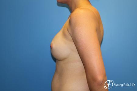 Denver Breast augmentation 7111 -  After Image 3