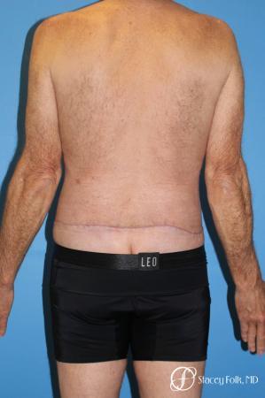 Denver Body Lift - Belt Lipectomy 8570 -  After Image 2