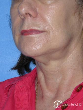 Denver Facial Rejuvenation Face Lift and Fat Injections 7117 - Before Image 2