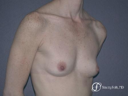 Denver Breast Augmentation 12 - Before Image 2